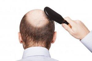 Cara Menumbuhkan Rambut Pada Botak Permanen