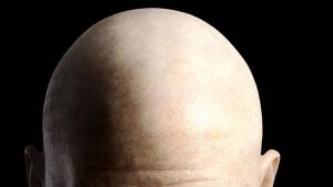 Cara Menumbuhkan Rambut Kepala Botak Bagian Depan