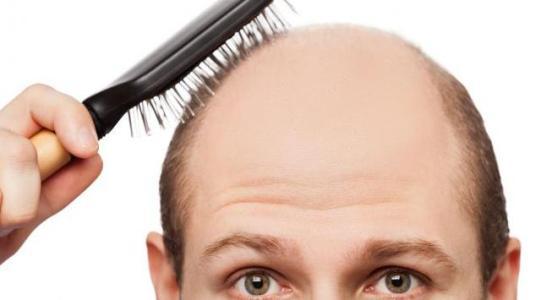 Cara Ampuh Mencegah Kebotakan Rambut, Green Angelica Paket Maksimal, Rudy Suwarno, NR