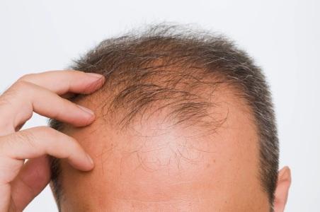 Menumbuhkan Rambut Botak Depan, Green Angelica Paket Maksimal, Bio Hair 123, Rudy Suwarno