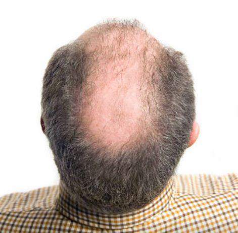 10 merk Obat Penumbuh Rambut Paling Bagus